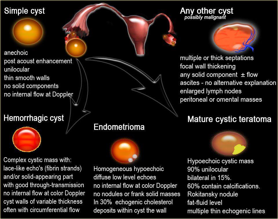 Fighting For My Family Ovarian Cyst Dermoid Ovarian Cyst Ovarian Cyst Treatment
