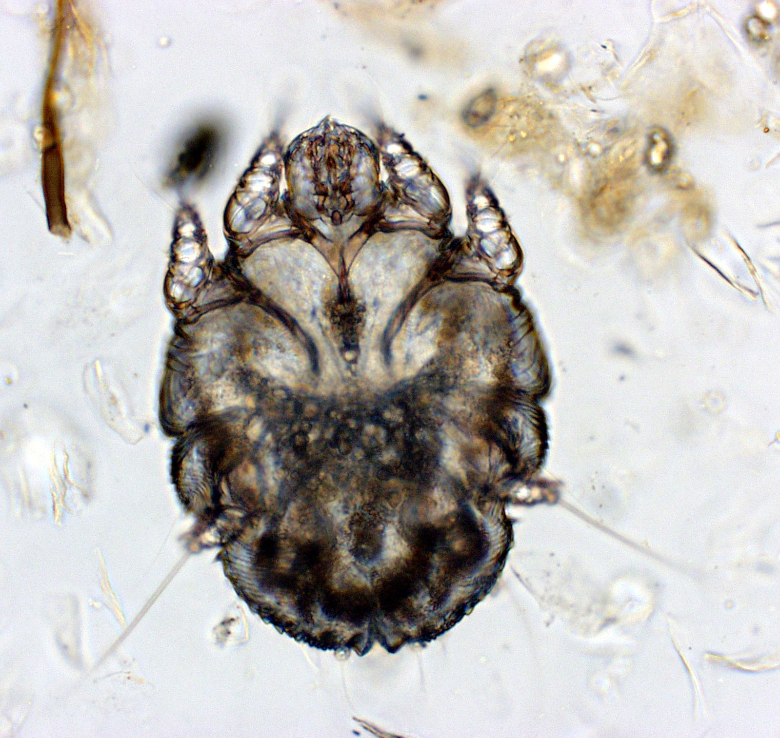 Scabies Sarcoptes Scabiei A Tiny Mite And Usually Not