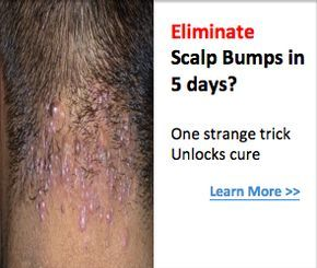 Do You Have Scalp Bumps Learn A Trick To Get Rid Of Them For Good