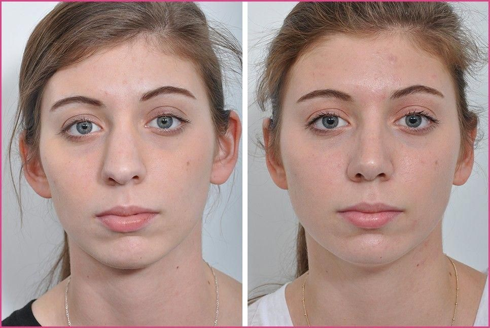 Rhinoplasty, Nose Surgery, Nose Job for Women in New York