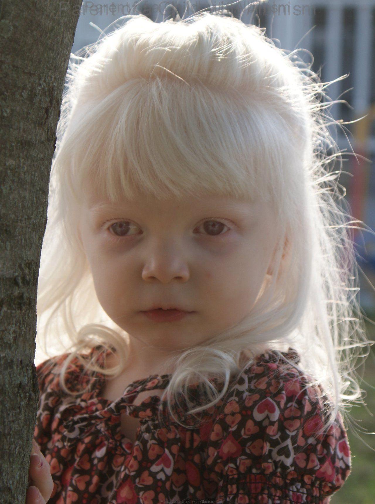 Pin By Miriam Noordpool On Albino Beauty Albinism Albino Human Albino