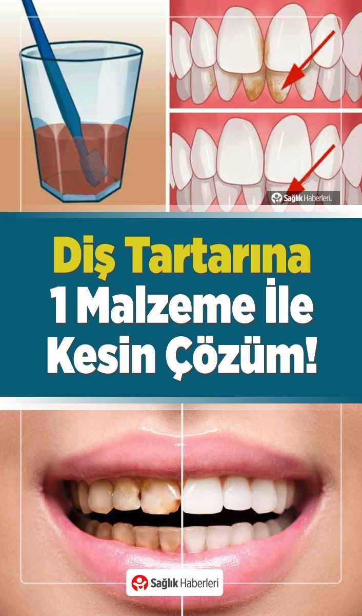 Photo of By Cleaning Tartars On Your Teeth With Just One Substance.