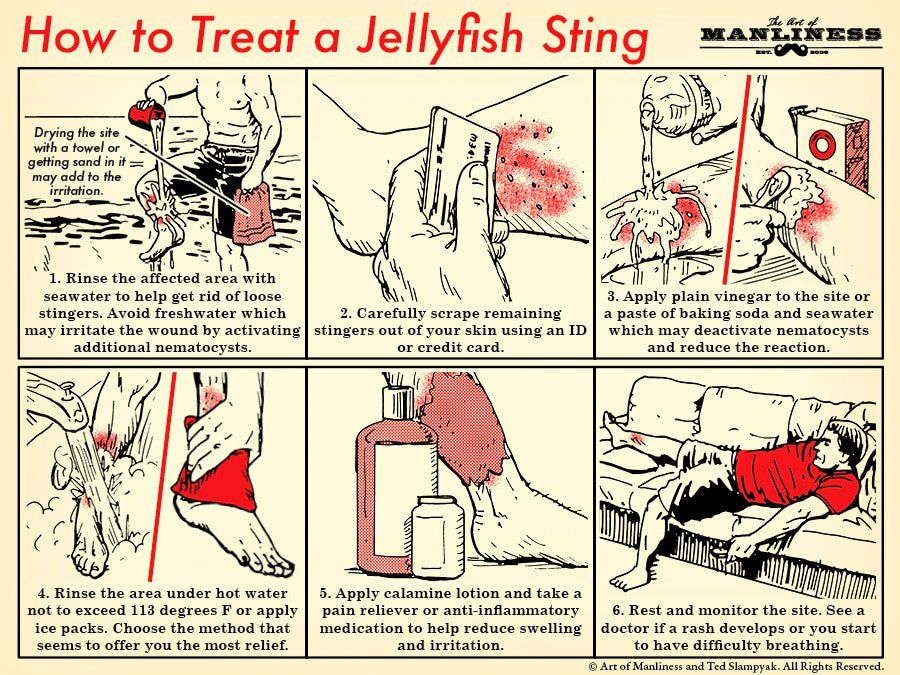How To Treat A Jellyfish Sting Habilidades De Supervivencia