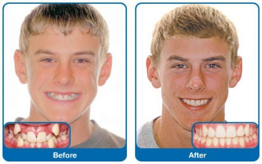 Damon braces before & after pictures Dr. Greg P Johnson ...