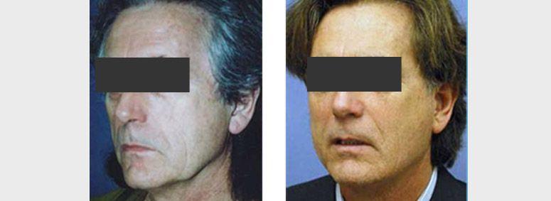 Με το facelift  ο Δρ Μπουκουβάλας ανορθώνει τους ιστούς που βρίσκονται κάτω από την επιδερμίδα, με αποτέλεσμα την απόκτηση νεανικής εικόνας στο πρόσωπο.