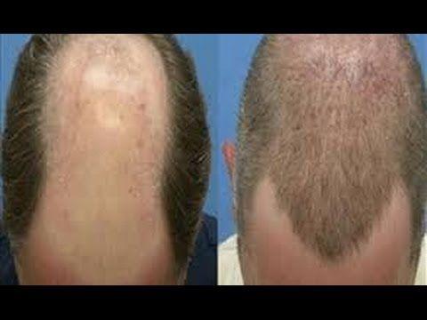 البرفيسور الغامدي يحذر من زراعة الشعر في الخارج تكلفة زراعة الشعر في السعودية Hair Clinic Cool Hairstyles Hair Removal Spray