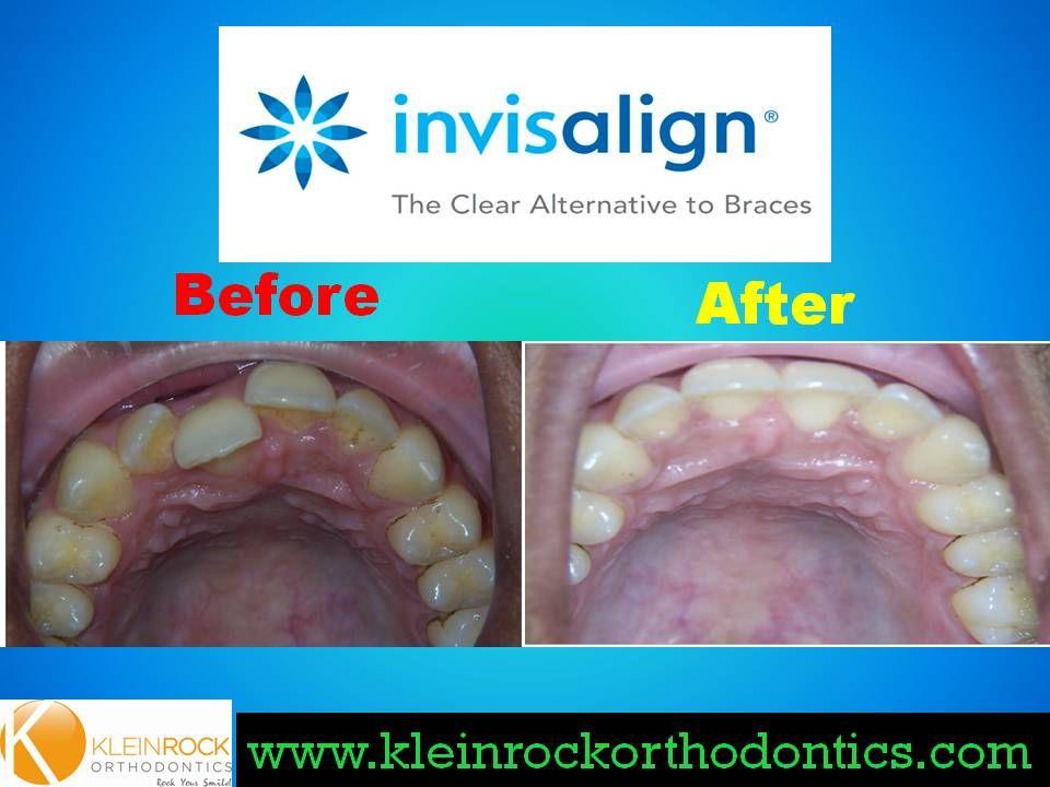 Crossbite treated with Invisalign Invisalign, Braces