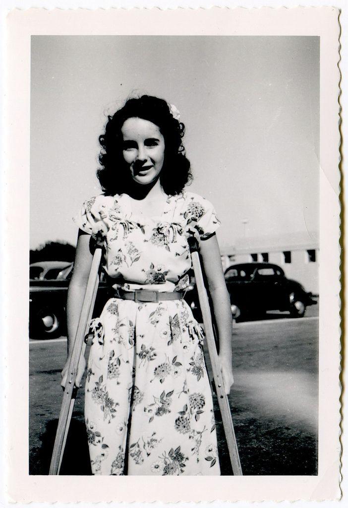 Beautiful Liz On Crutches Elizabeth Taylor Young Elizabeth Taylor Elizabeth