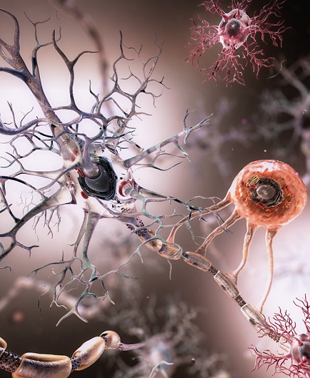 Immune response in the human brain accurately measured for the first time ever. – Healthinnovations