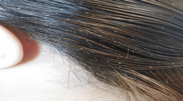 تفسير حلم القمل للحامل والعزباء يسير في الرأس وعلي الملابس Eucalyptus Oil Head Lice Infestation Lice Removal