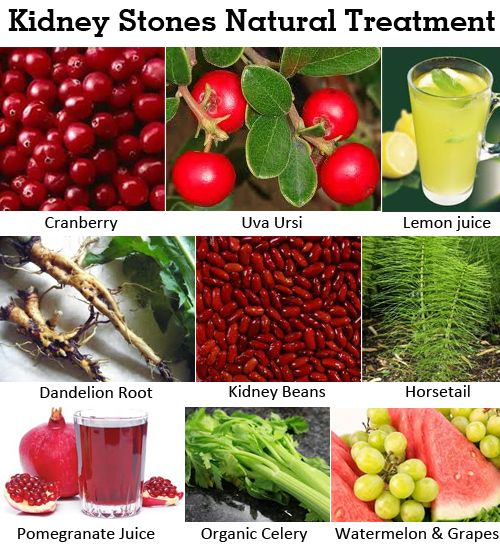 Kidney Stones Natural Treatment Herbalism Oxalate Diet Low Oxalate Diet
