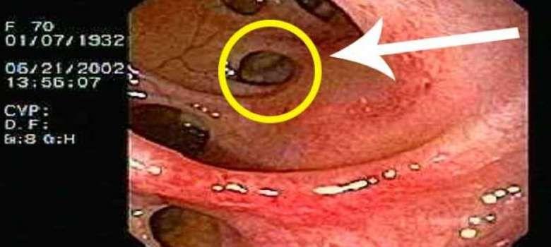 infección por parásitos colonoscopia