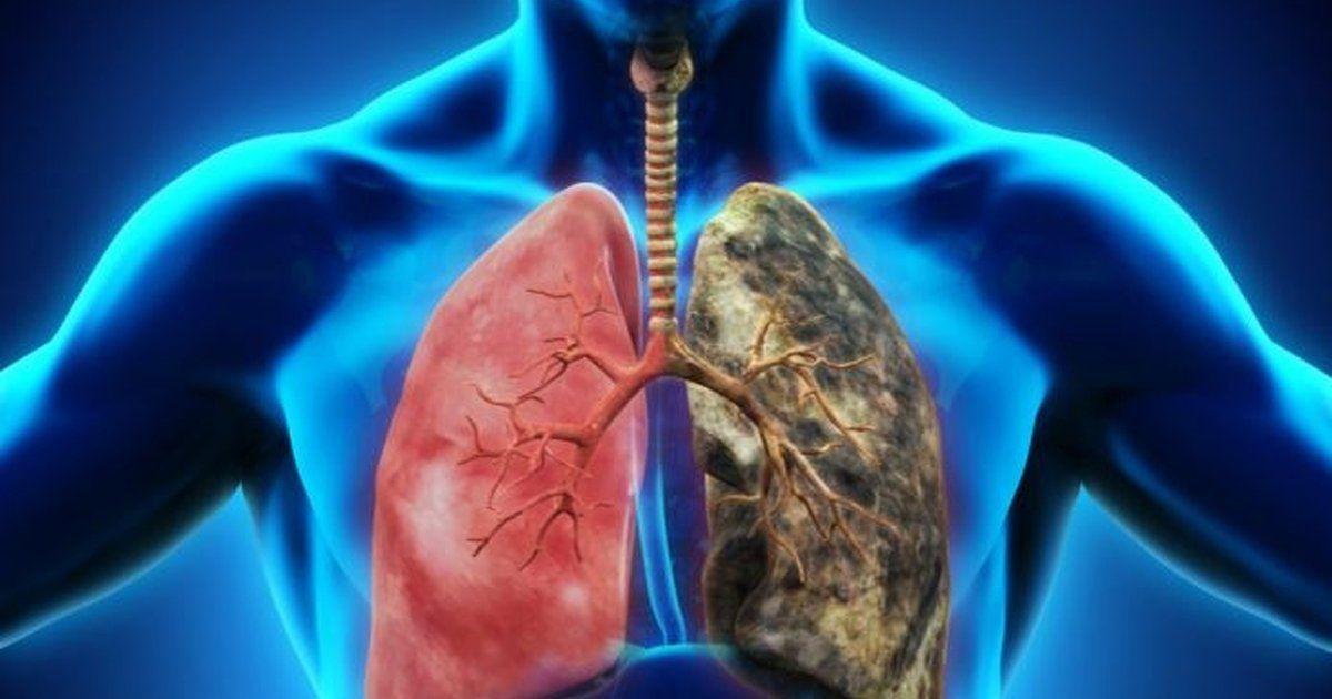 Tüdőtisztítás dohányzás után, Dohányzás - A tüdő állapota leszokás után, Dohányzó tüdőtisztító