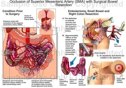 Occlusion Of Superior Mesenteric Artery Sma With Surgical Bowel