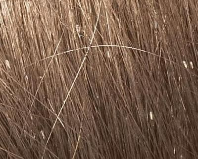 nice representation of nits on the hair shaft..sometimes they shimmer in the light..Head Lice Specialist