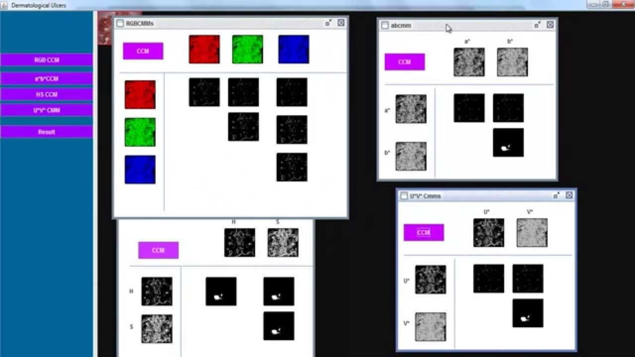 OpenCV Image Processing Projects | 2015 OpenCV  | OpenCV