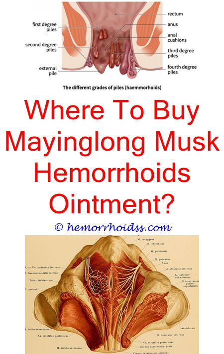 How Long To Get Rid Of Hemorrhoids