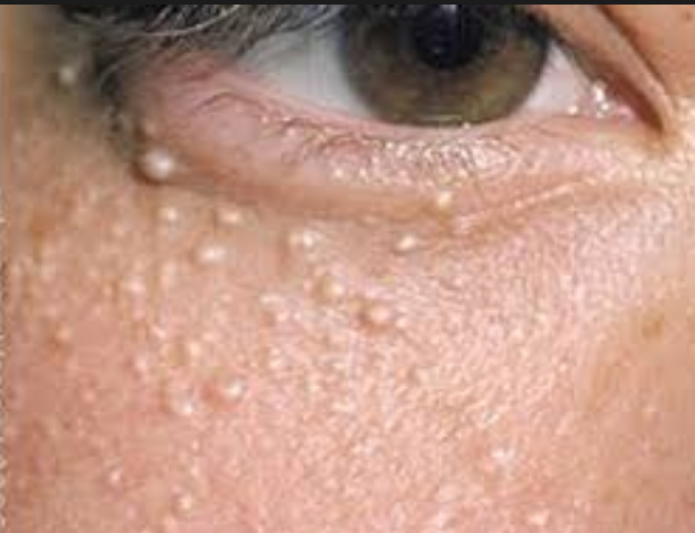 How To Get Rid Of White Spots Under Your Eyes