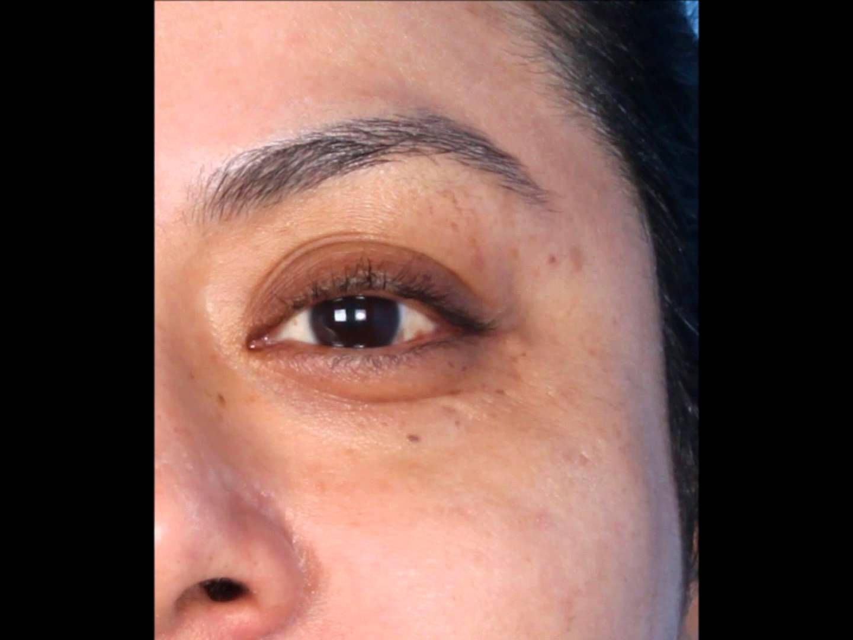 Dermapen Before And After Photos Dermapen Skin Treatments Skin Needling