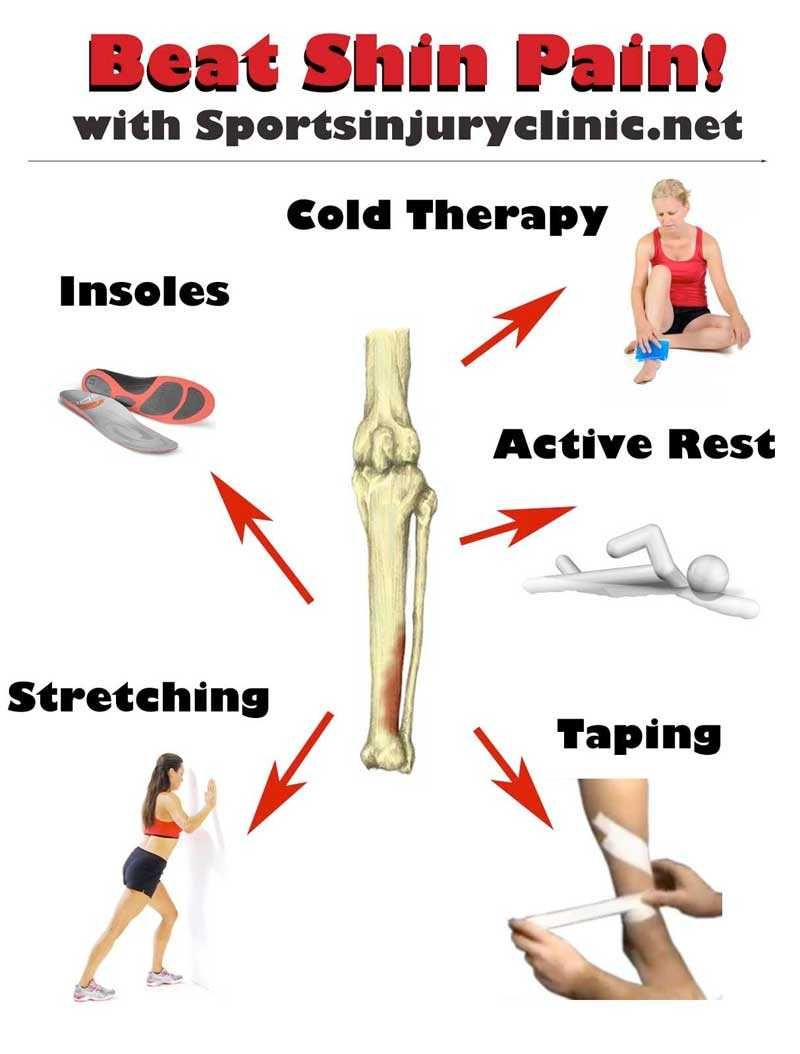 Shin splints type symptoms can be difficult to treat