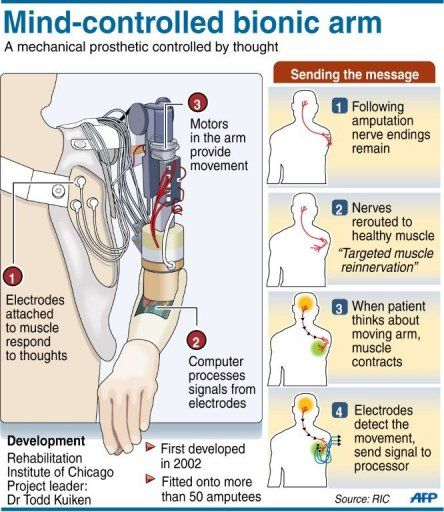 How it works, Bionic Arm!