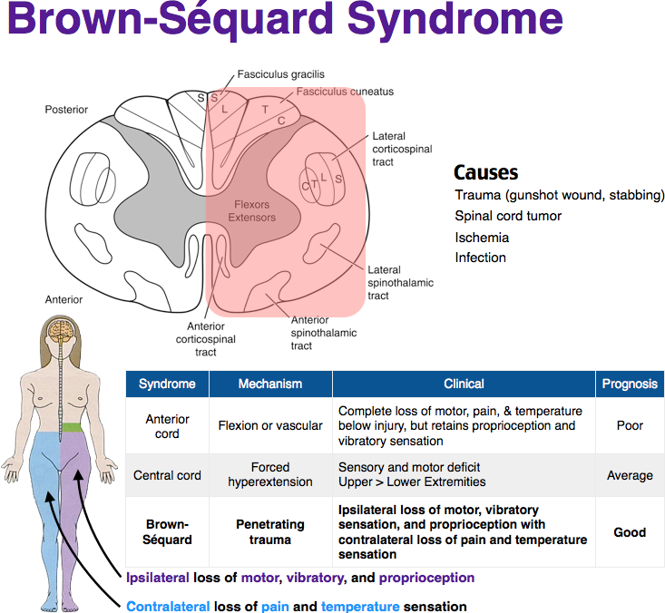 Brown Sequard Syndrome Medical Knowledge Medical School Studying Medical Terminology Study
