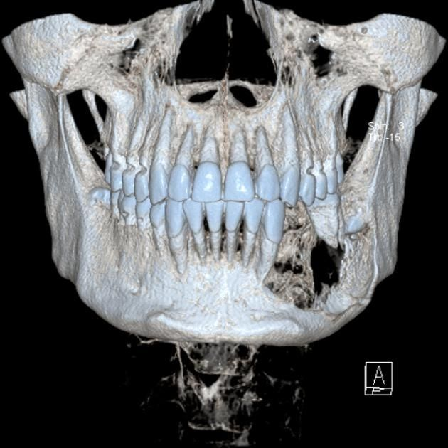 Ameloblastoma   Radiology Case   Radiopaedia.org: 37 year-old member of the armed forces with jaw pain. 3D giving a single image view of the destructive mass,  The 2nd left molar is floating.