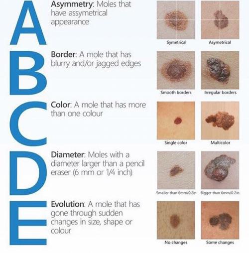 Pin On Skin Remedies