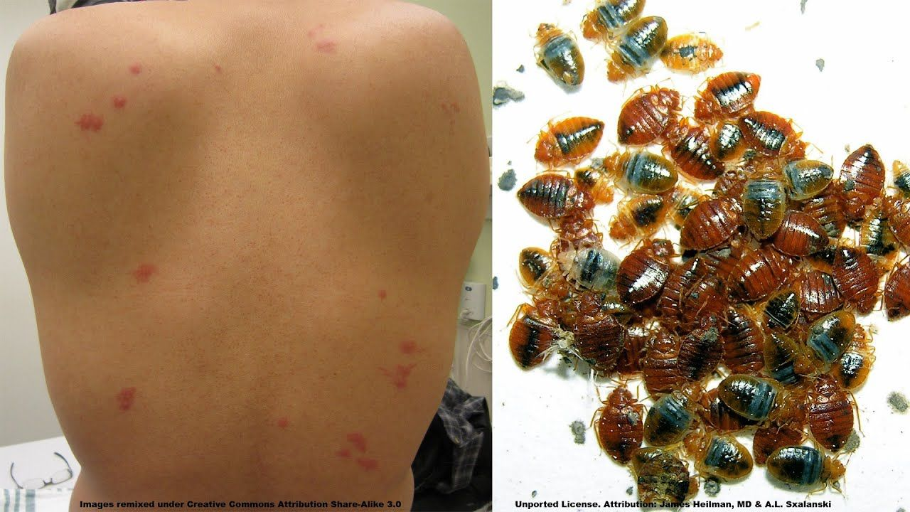 How To Find Out If You Have Bed Bugs Discreetly Surge