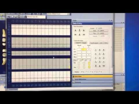 Dentrix Training Np Tooth Chart Functions Youtube Tooth Chart Dental Assistant Dental Office