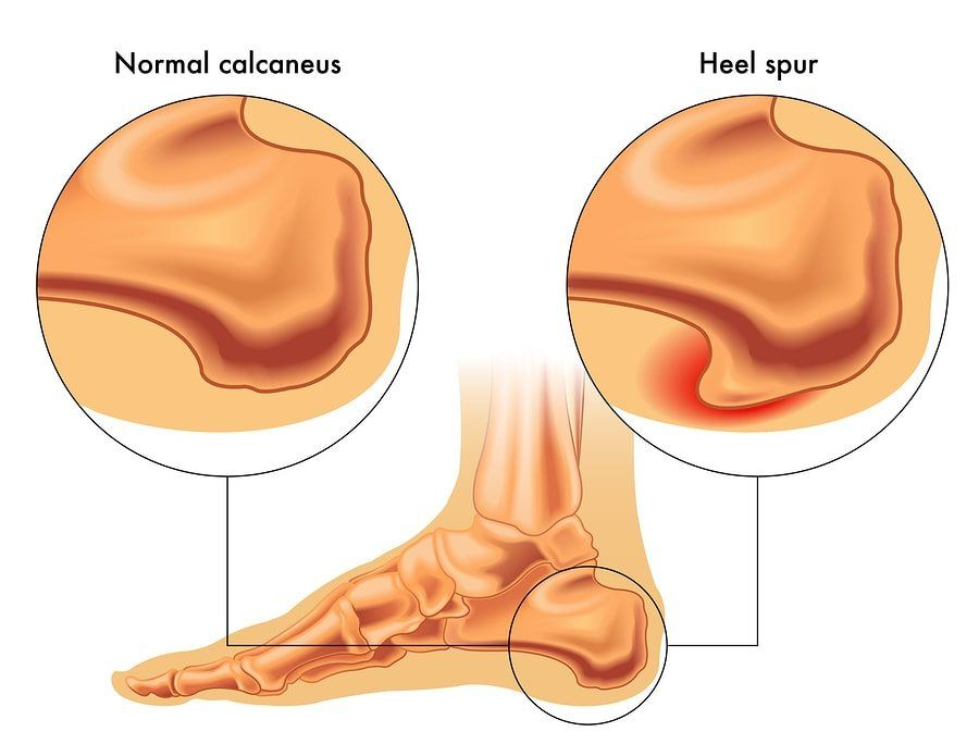 Bone spurs remedies for natural How To