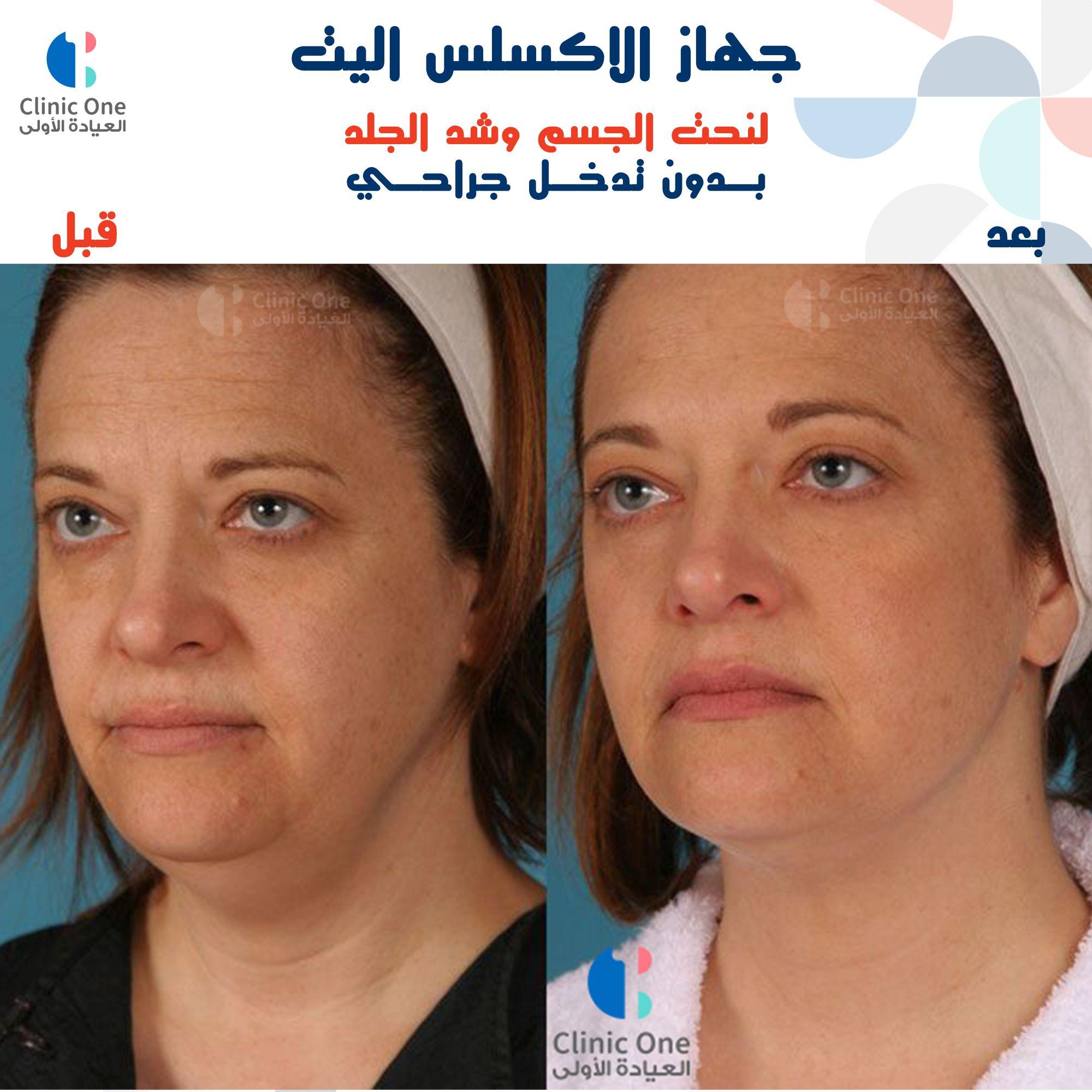 الاكسلس اليت للشد والنحت Lsu 1 J Clinic