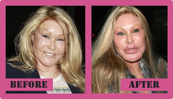 Jocelin Wildstein - Catwoman plastic Surgery disaster