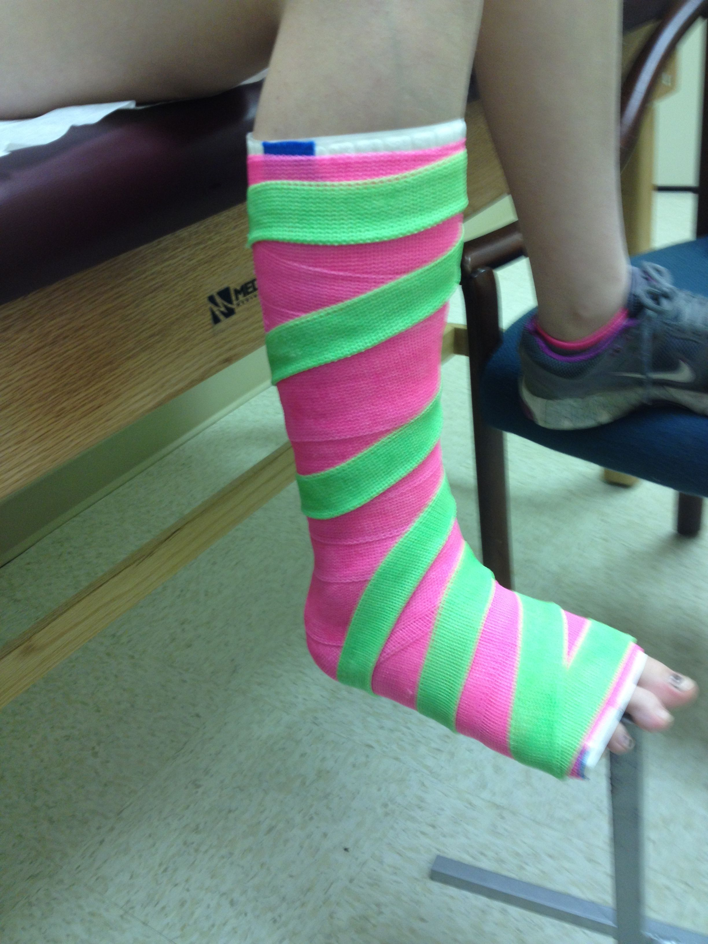 Short Leg Cast With Stripes Fiberglass Leg Cast It Cast Legs