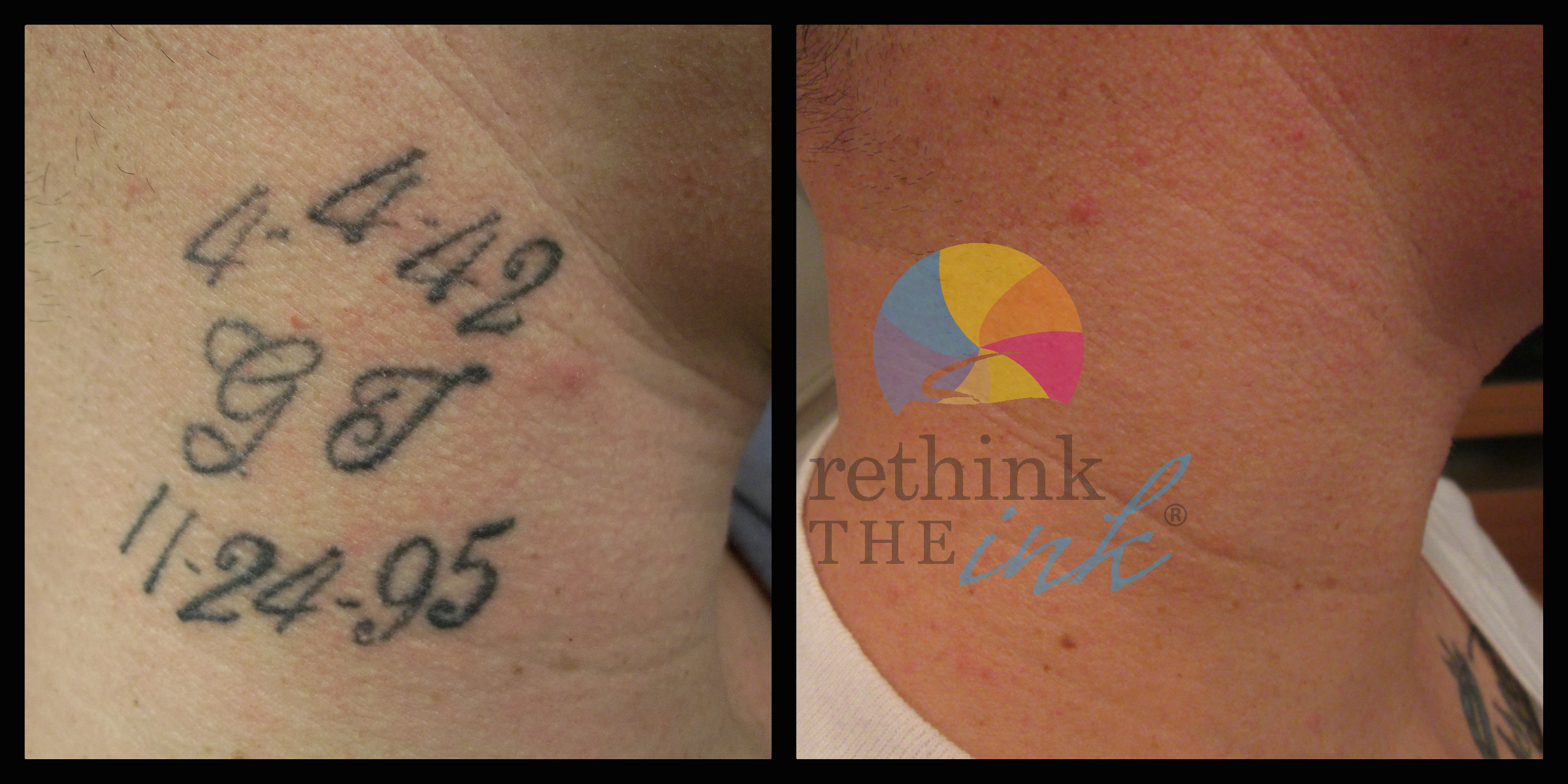 Tattoo Removal Before and After PicturesRethink the Ink