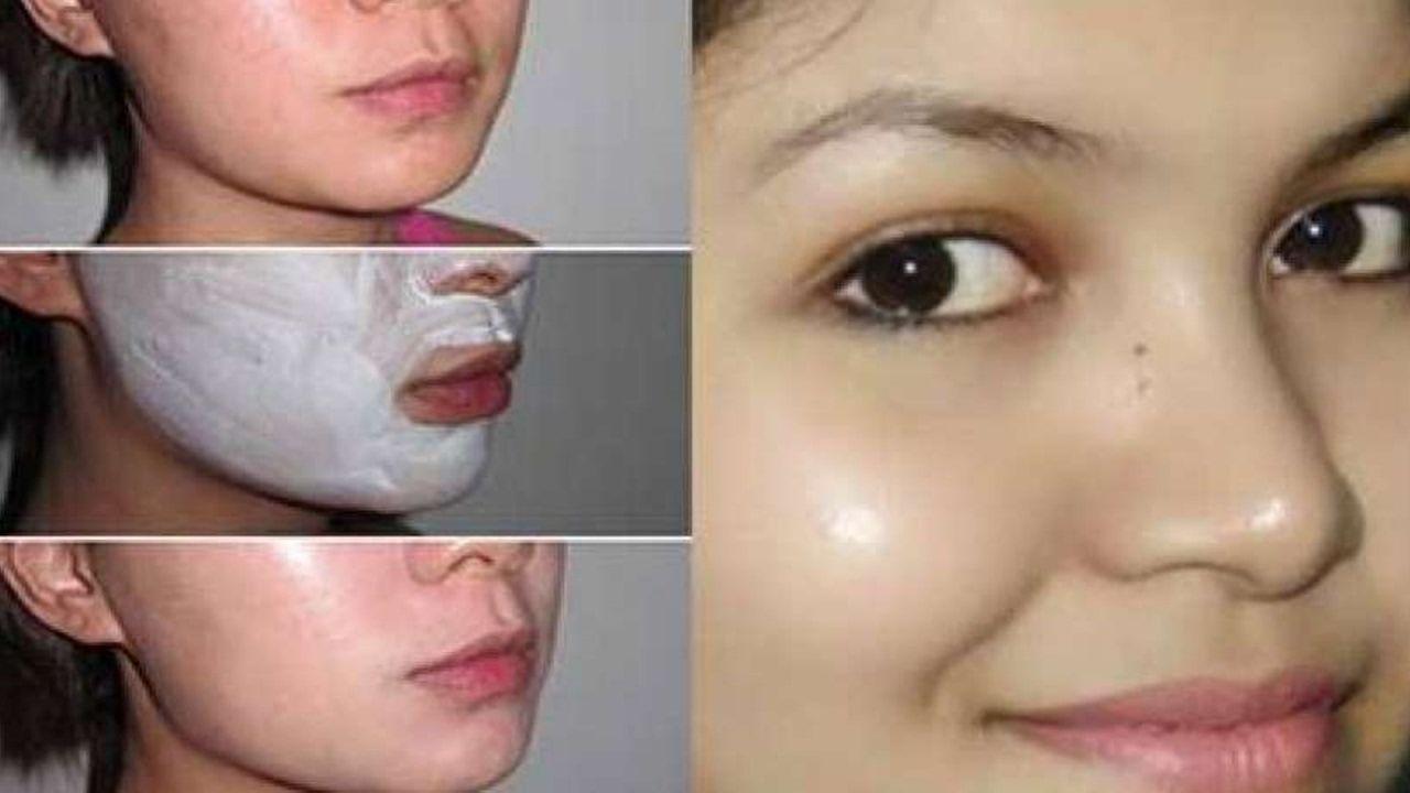 Bicarbonato de sodio para eliminar manchas en la cara