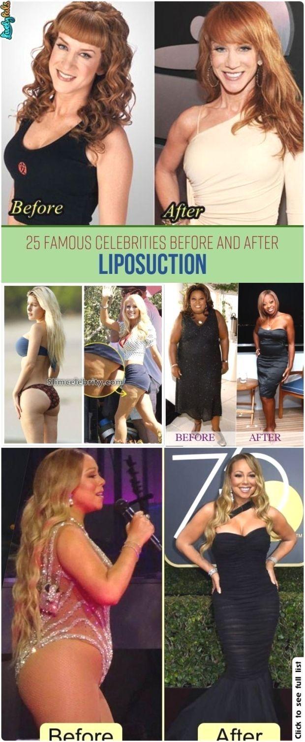 #celebrities #fitness #surgery #liposuction #weightLoss