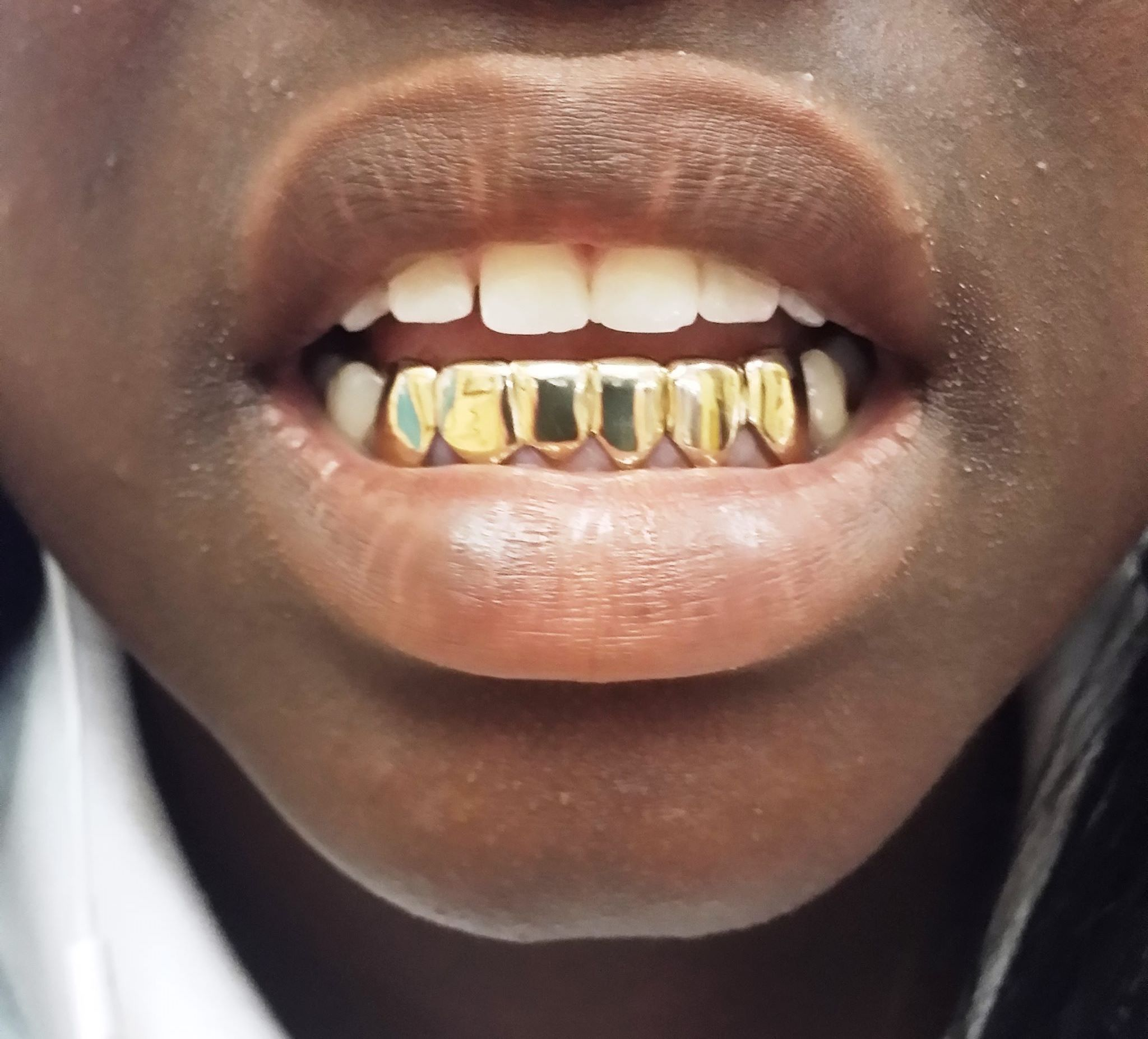 GoldGrillzMiami.com Custom Gold Grillz Yellow and White Gold Diamond Grillz  Teeth Official Gold Grillz Shop! 859e688e7