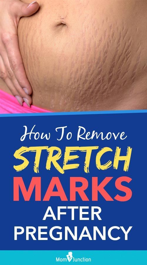 17 how to get rid of stretch marks ideas