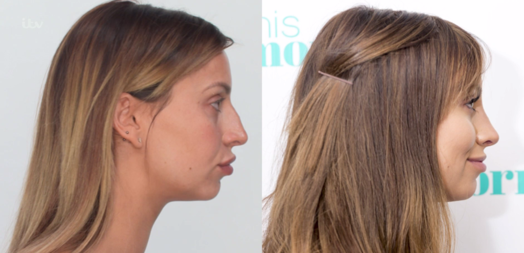 Ferne Mccann Plastic Surgery Before And After Photos Nose Fillers Plastic Surgery Celebrity Plastic Surgery