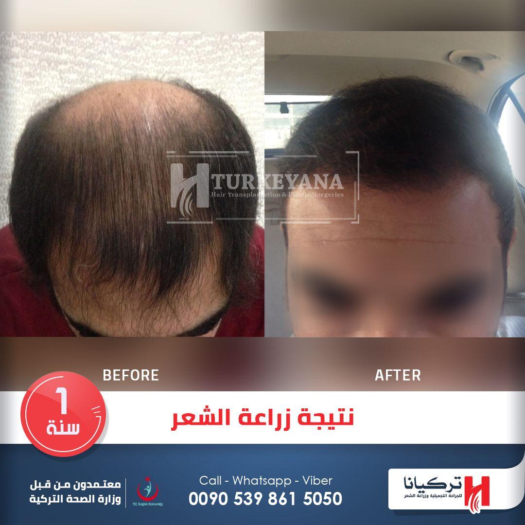 نتيجة زراعة الشعر بعد سنة من العملية في مركز تركيانا اسطنبول Turkeyanaclinic الف Hair Transplant Cosmetic Dentistry Services Cosmetic Surgery