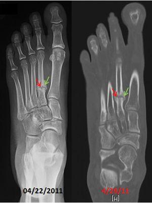 Pin On Jones Fracture Of Foot