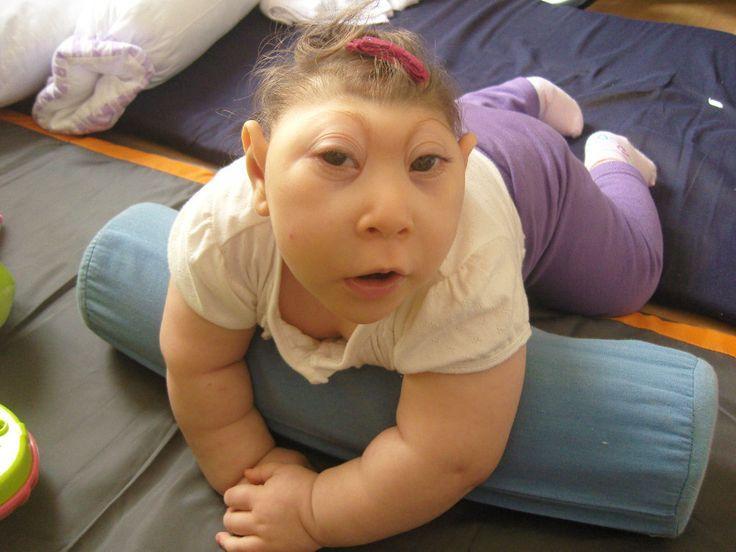 birth Anencephalic defects baby
