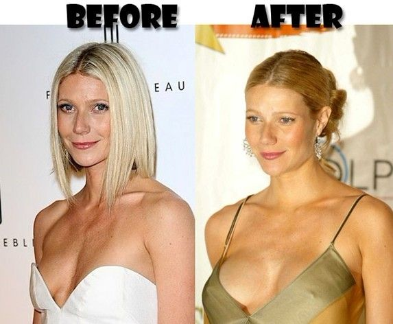 After before boob job picture