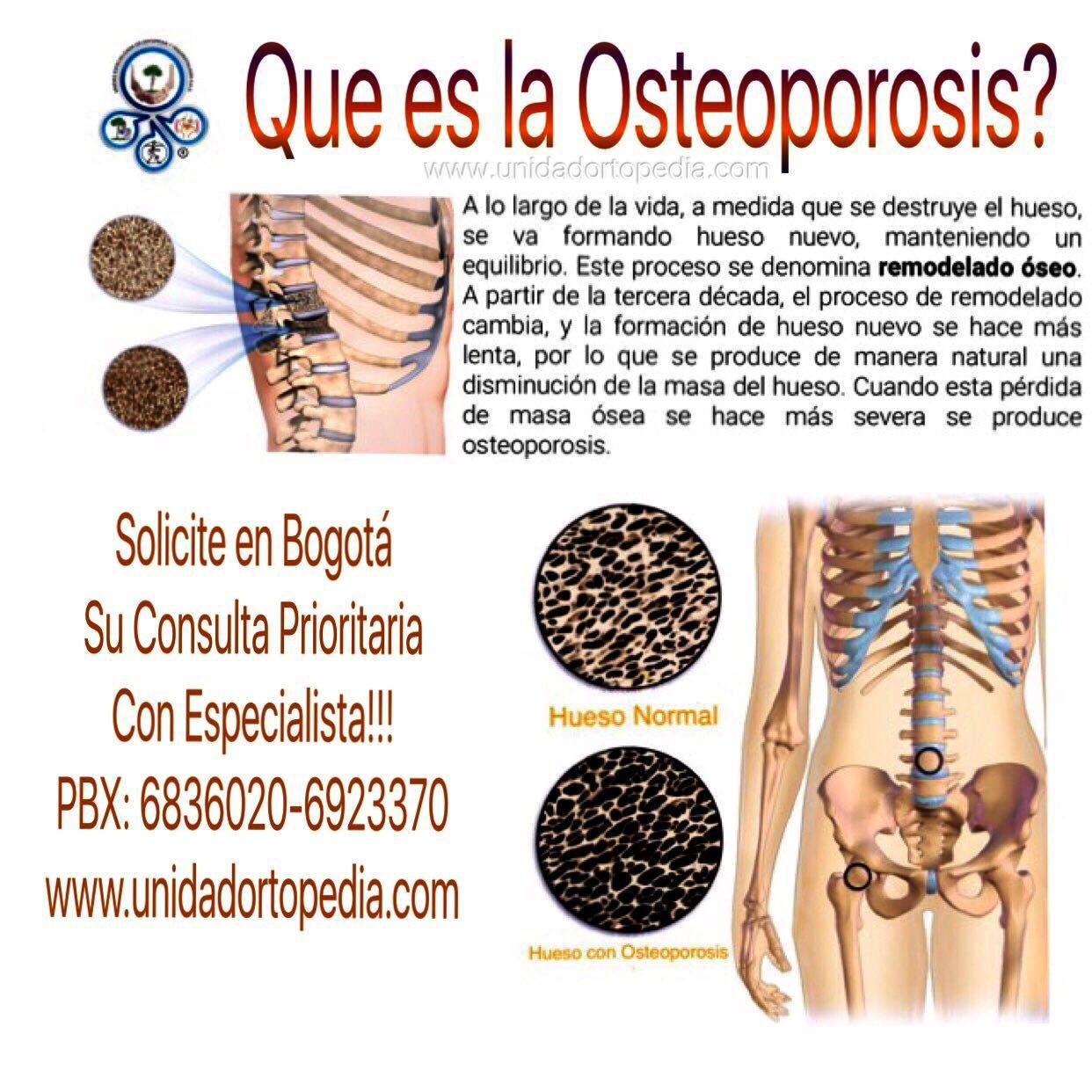 Clínica especializada en tratamientos contra la osteoporosis en la Unidad Especializada en Ortopedia y Traumatologia PBX: 6923370 www.unidadortopedia.com Bogotá - Colombia.