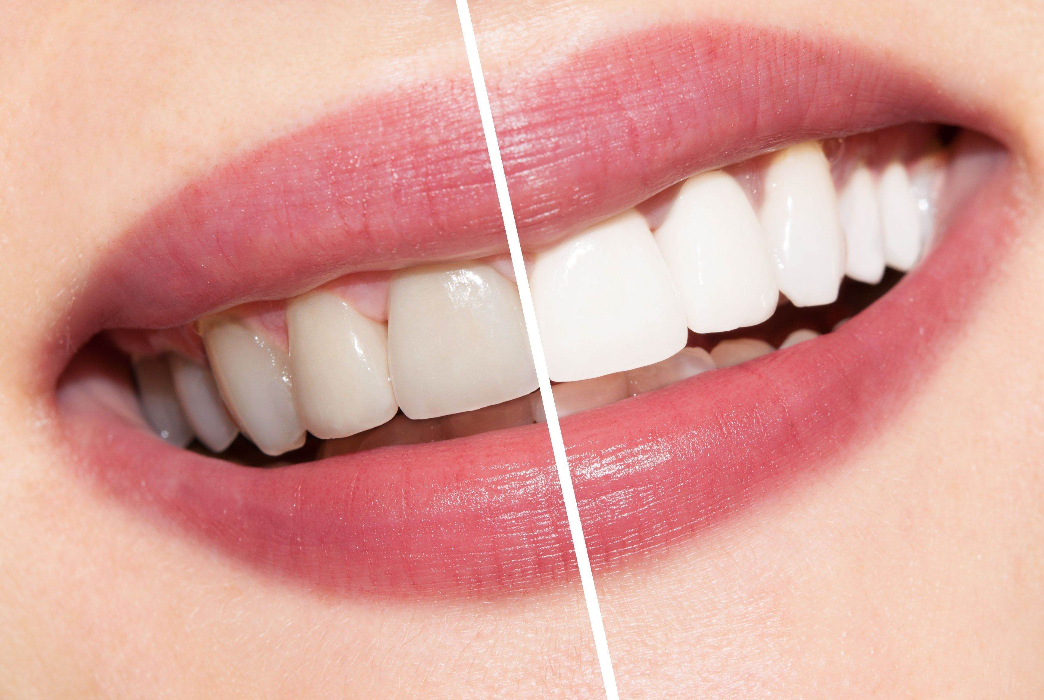 Clareamento Dental Moldeira Antes E Depois Clareamento Dental