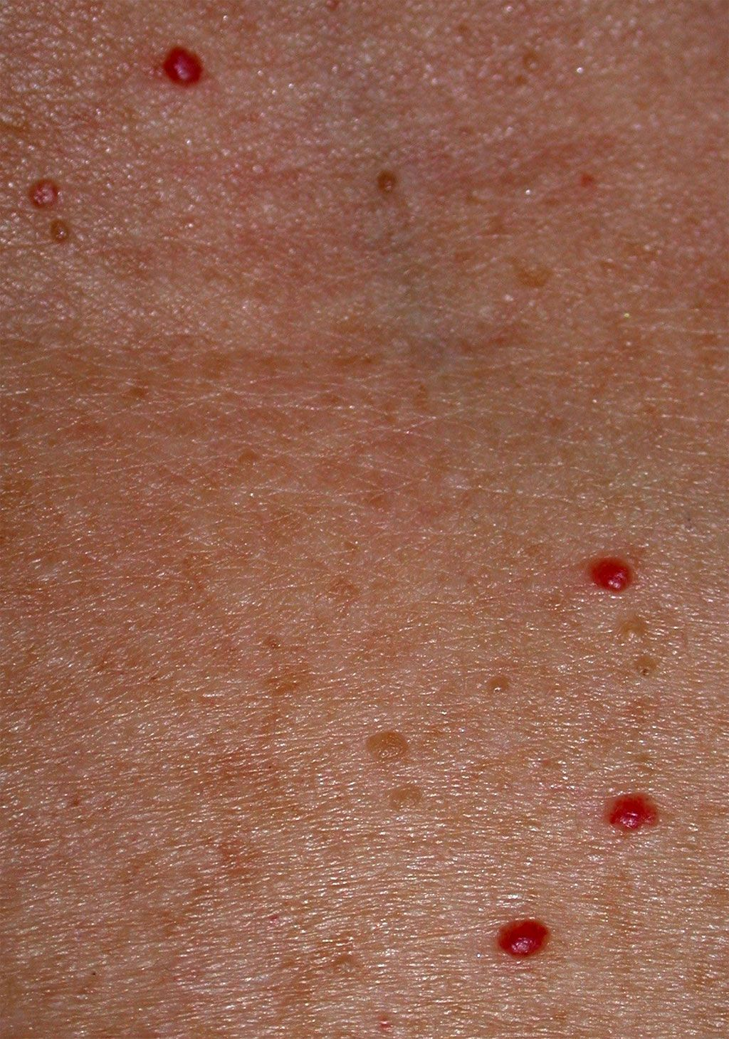 Cherry Angiomas Associated with Bromine Toxicity and Iodine