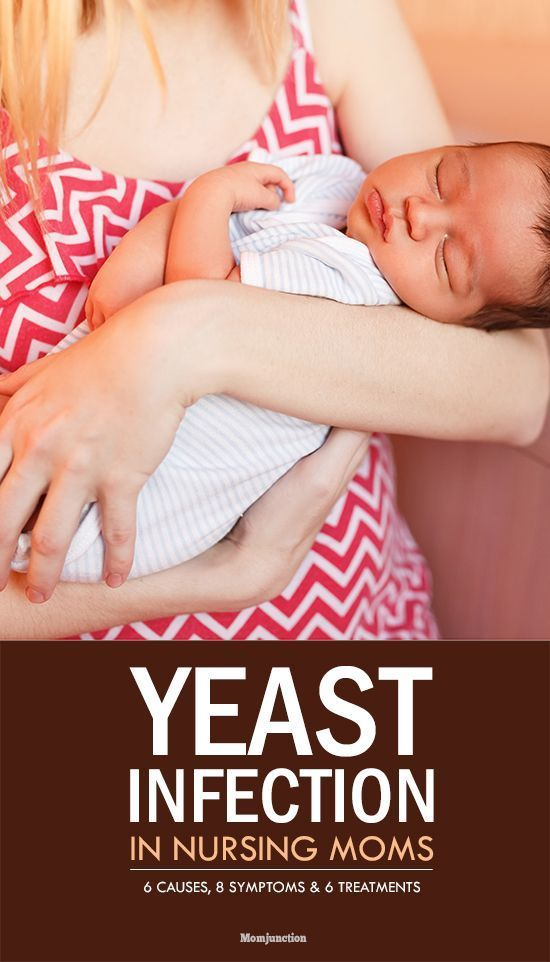 Breastfeeding Yeast Infection 6 Causes 8 Symptoms And 6