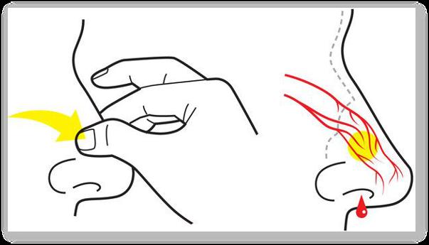 simptomele durerii în varicoză