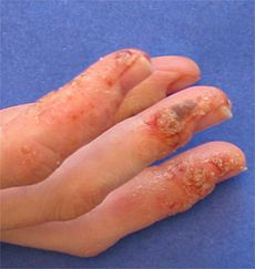 This Is A Picture Of Dyshidrotic Eczema I Have Suffered From This